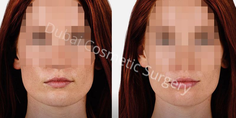 Lip Augmentation before after