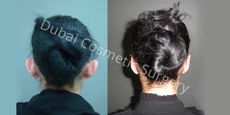 Otoplasty Before & After