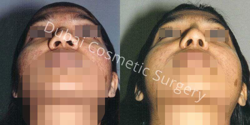Rihnoplasty Results 1