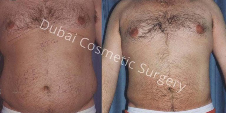 breast lifts before and after pictures  613405
