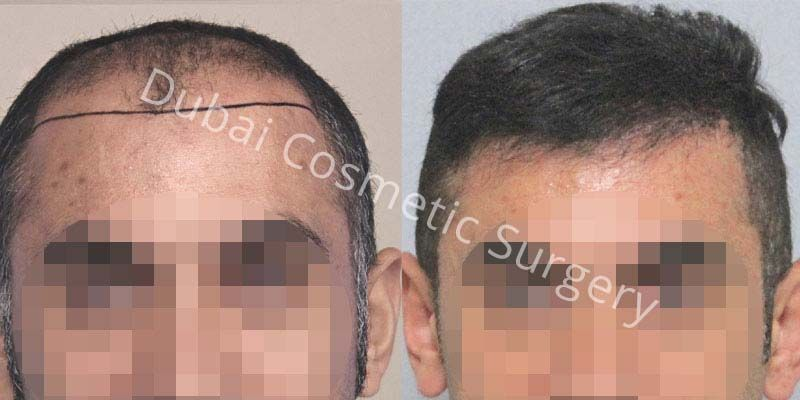 hair-transplant-16