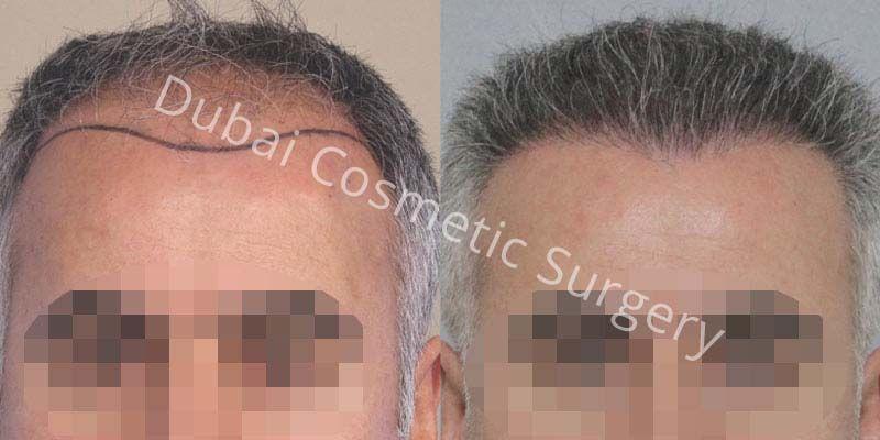 hair-transplant-24