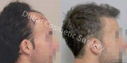How To Choose Best Hair Transplant Clinic Delhi India