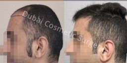 How Much Hair Transplant Cost In Dubai Abu Dhabi Get The Best