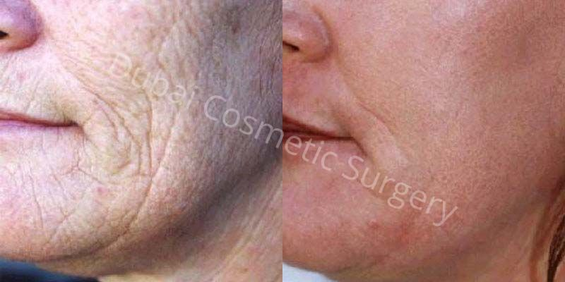 Skin resurfacing before after