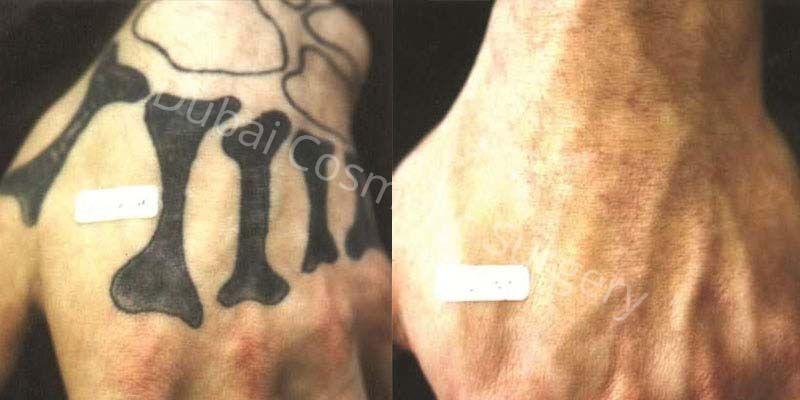 tattoo removal in Dubai