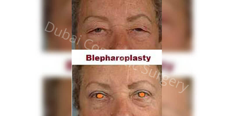 eyelid before after