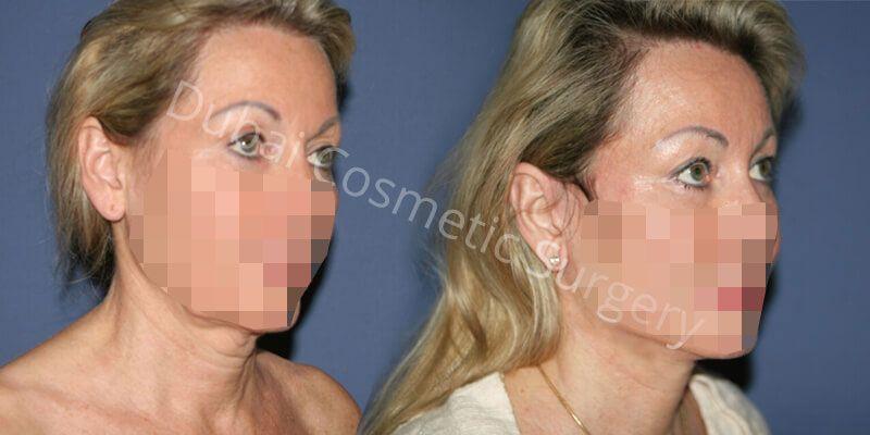 Facelift, Eyelid Before & After