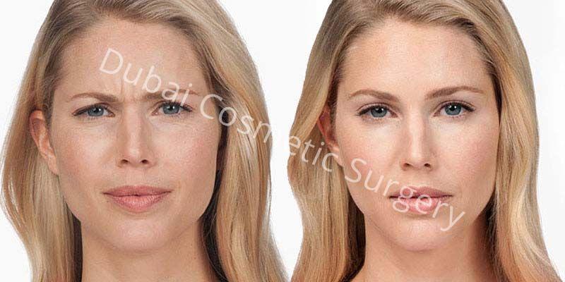 Wrinkle Treatment 1