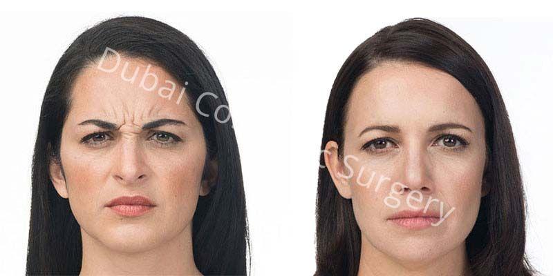 Wrinkle Treatment 2