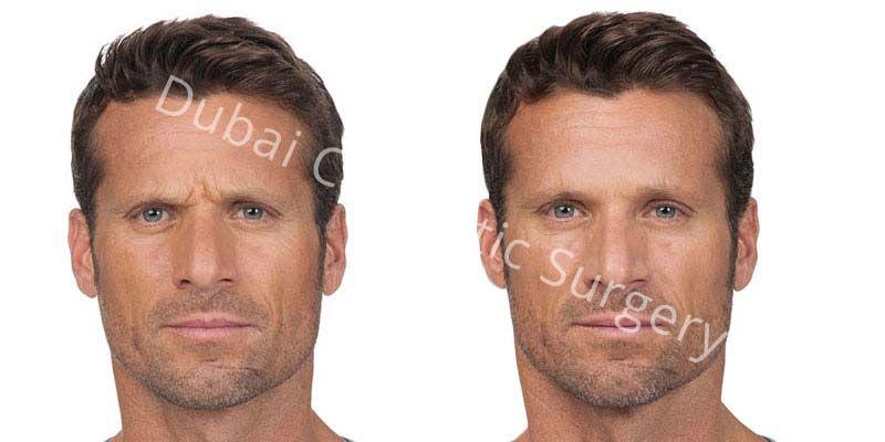Wrinkle Treatment 4