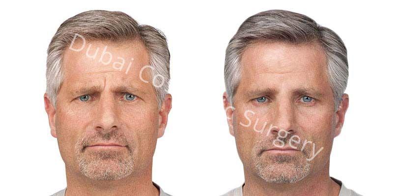 Wrinkle Treatment 5