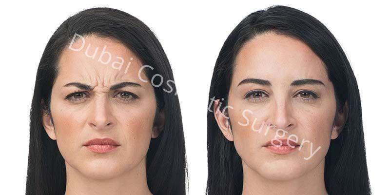 Wrinkles 10