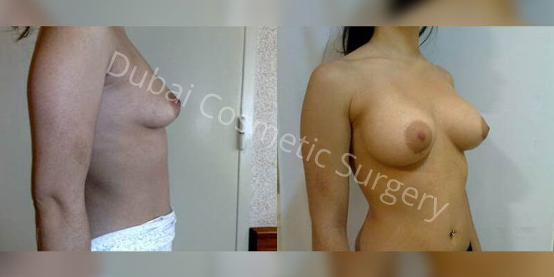 breast augmentation4