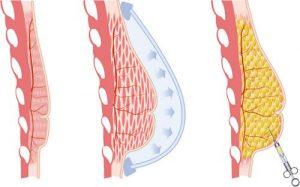 BRAVA Breast Augmentation Treatment