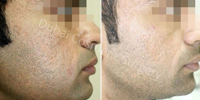 Acne Scars Treatment Before Amp After Results Dubai