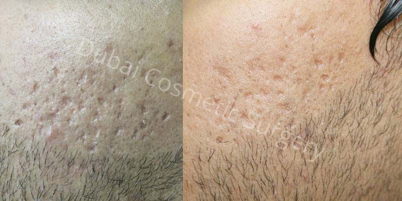 Acne Scars Results before & after 13