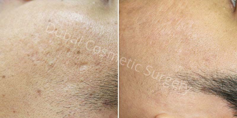 Acne Scars Results before & after 19