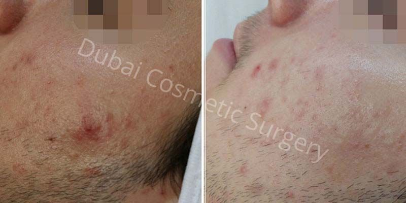 Acne Treatment Patient