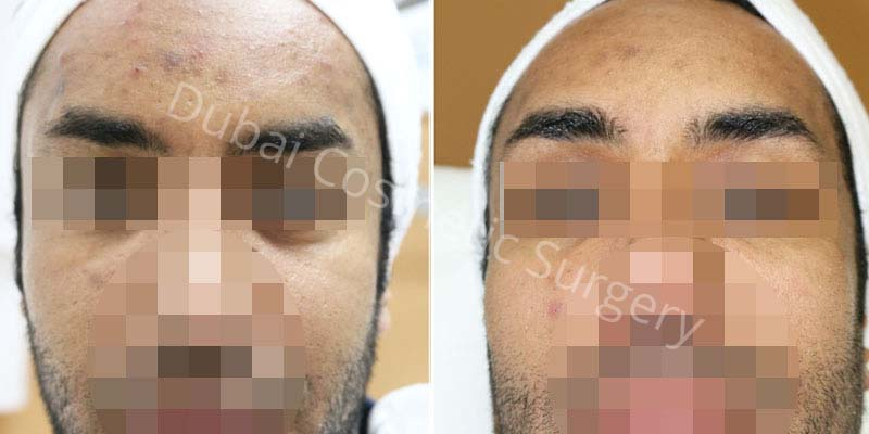 Acne Treatment Patient 4
