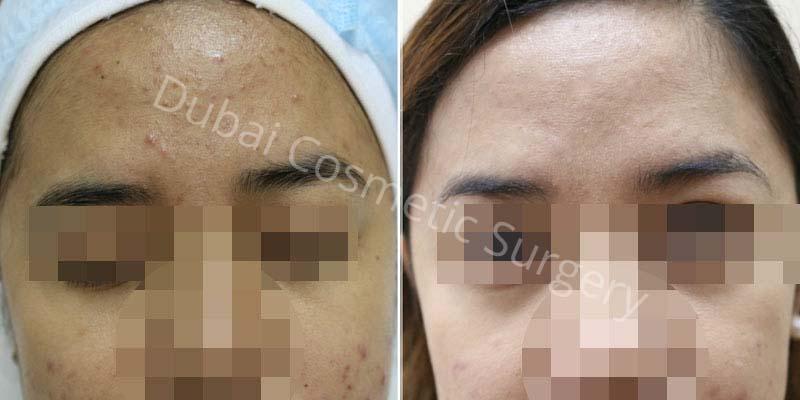 Acne Treatment Patient 5