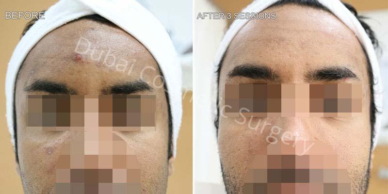 Acne Treatment Patient 7