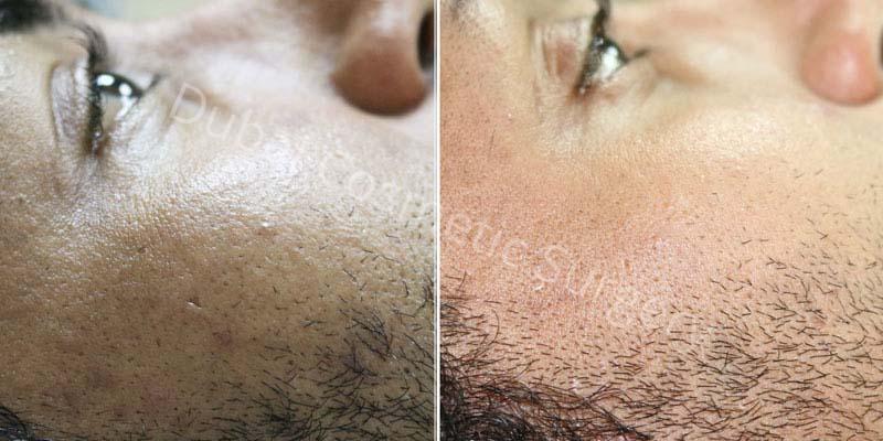 Acne Treatment Patient 8