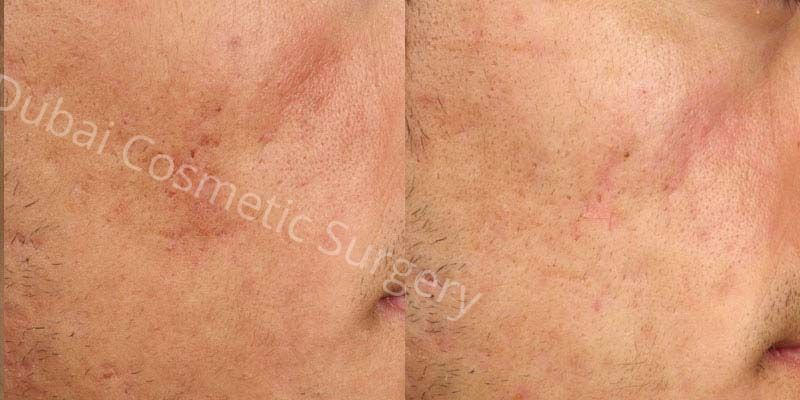 acne scars before after