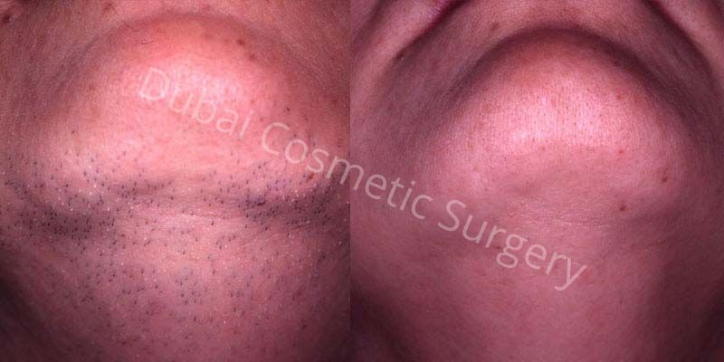 hair removal before after