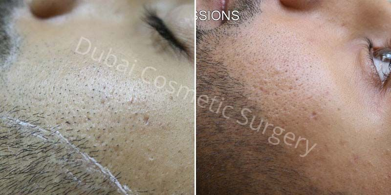 Permanent Laser Hair Removal In Dubai Dubai Cosmetic Surgery