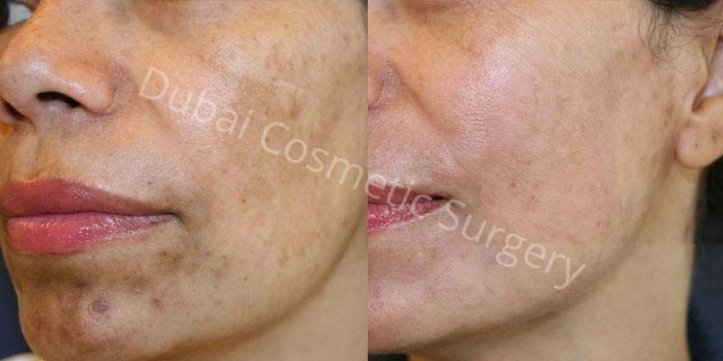 melasma treatment before after