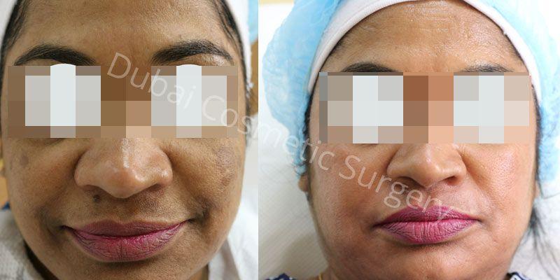 Melasma before & after