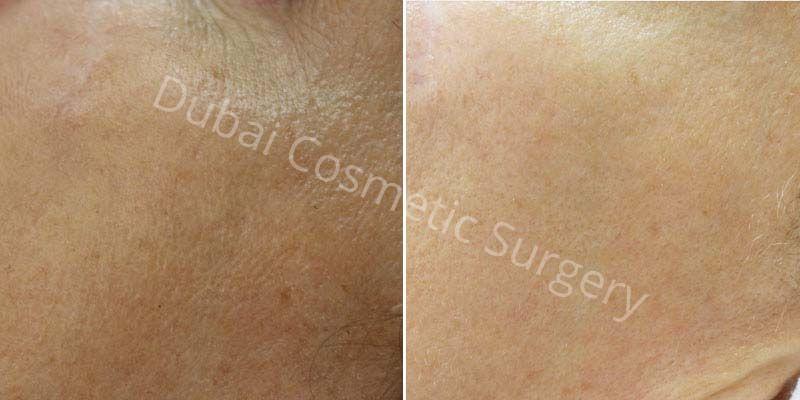 Skin Rejuvenation before & after 2