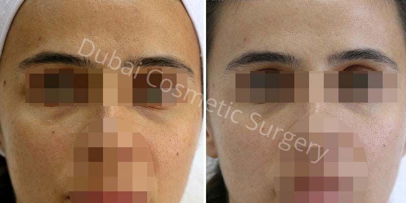 Skin Rejuvenation before & after 3