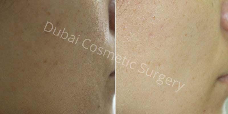 Skin Rejuvenation before & after 4