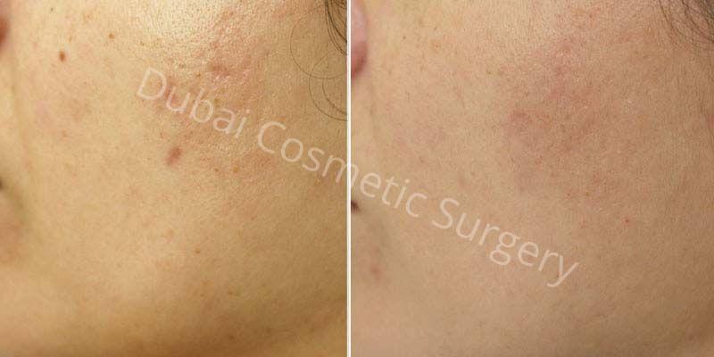 Skin Rejuvenation before & after 5