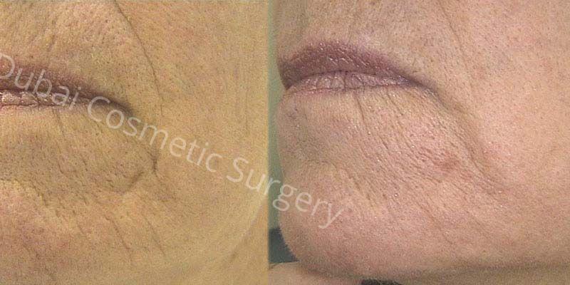 skin-rejuvenation before after