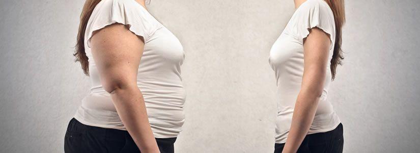 Liposuction - Types & Benefits in Dubai