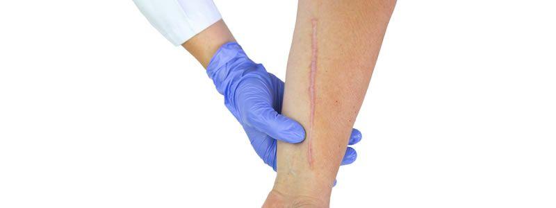 Scar Repair & Revision in Dubai