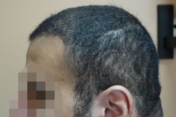 Adham AL Tantawy Hair Transplant