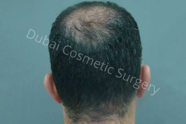 Eddy Ghaleb Hair Transplant