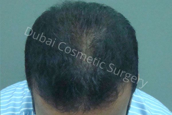 Farhan Kapadia Hair transplant