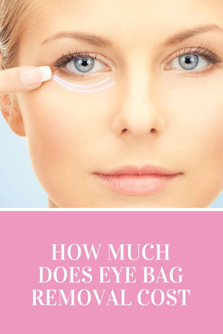 How Much Does Eye Bag Removal Cost Dubai Cosmetic Surgery 174