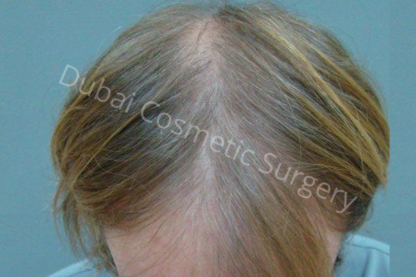 Patient 1 Hair transplant
