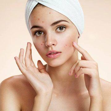 Best Acne Treatment Clinic In Dubai Amp Abu Dhabi Men
