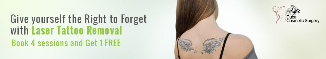 Laser Tattoo Removal – Book 4 Sessions & Get 1 FREE!