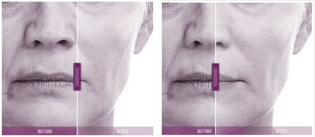 cheek area volift results 3