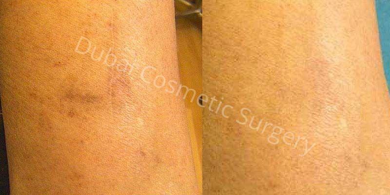 scars removal in Dubai