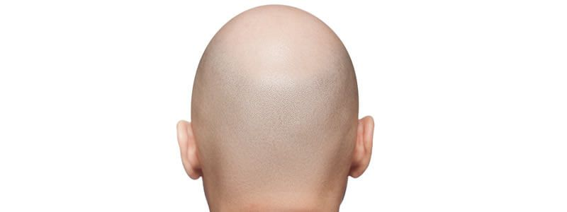 Tips on Dealing with Baldness