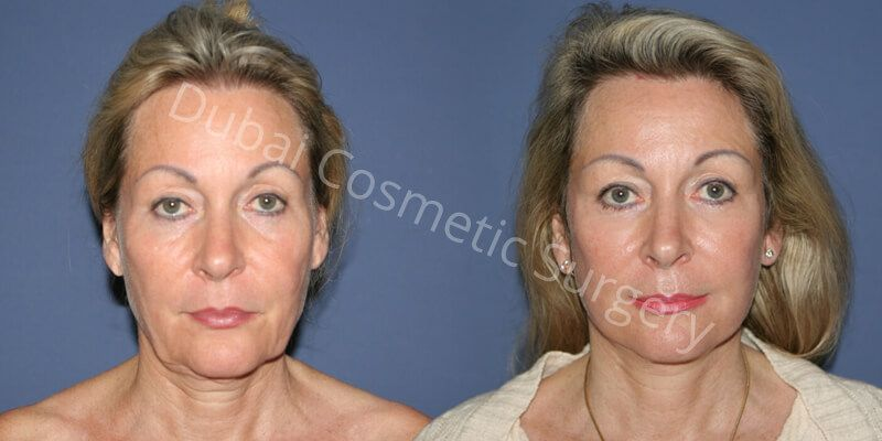 Neck Lift, Facelift, Eyelid